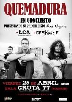 Quemadura en Madrid (Abril de 2013)